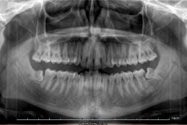 Extração de dentes do siso Figura 1
