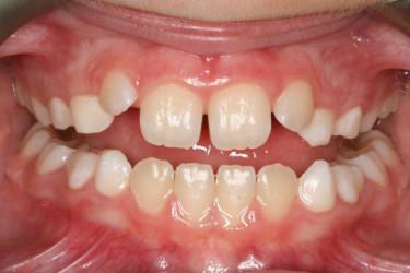 Ortodontia mordida cruzada Figura 3