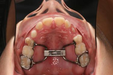 Ortodontia mordida cruzada Figura 5