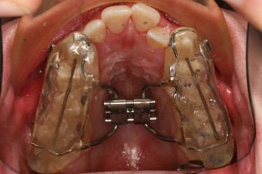 Ortodontia mordida cruzada Figura 6