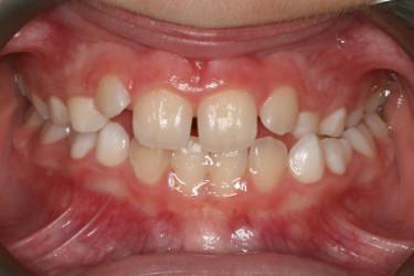 Ortodontia mordida cruzada Figura 8.2 Antes
