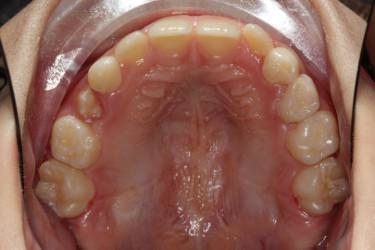 Ortodontia mordida cruzada Figura 9.1 Depois