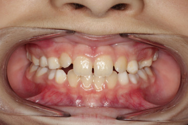 Ortodontia mordida cruzada Figura 9.2 Depois