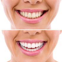 Tratamento branqueamento dentário