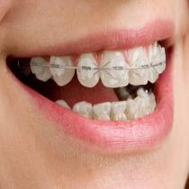 Tratamento ortodontia com brackets estéticos