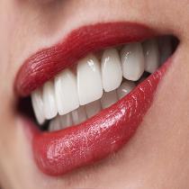 Tratamento reabilitação oral estética